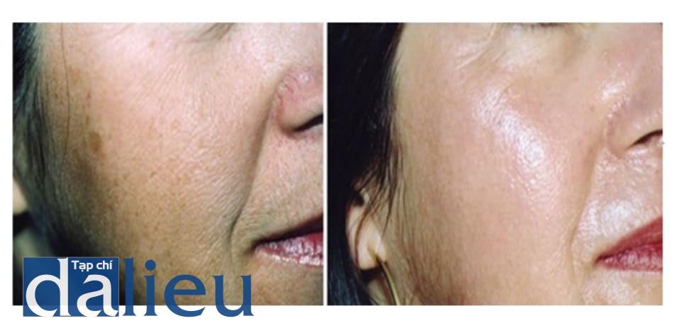 Hình 4: bệnh nhân 1, trước và 6 tháng sau khi peel dung dịch Jessner+TCA 35%