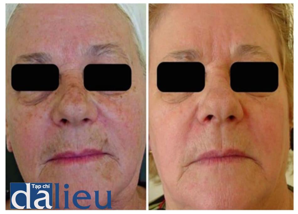 Hình 5: bệnh nhân 2, trước và 3 tháng sau khi peel dung dịch Jessner+TCA 35%