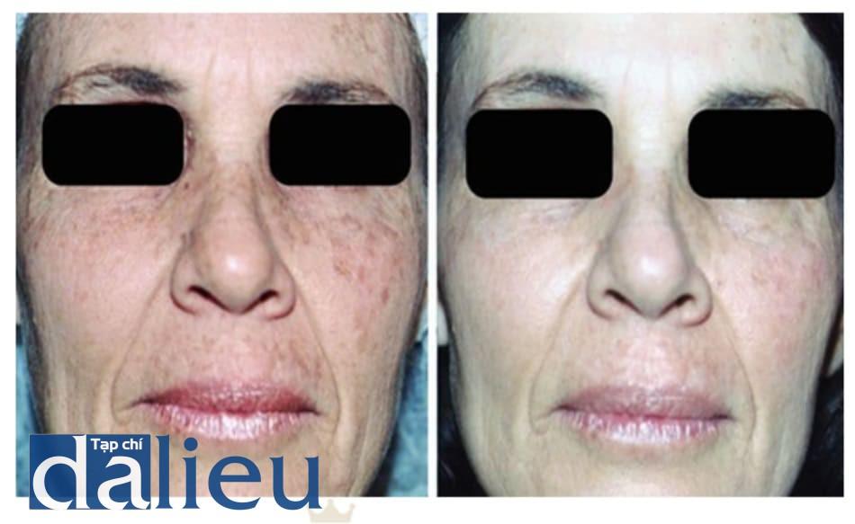 Hình 6: bệnh nhân 3, trước và 6 tháng sau khi peel dung dịch Jess- ner+TCA 35%
