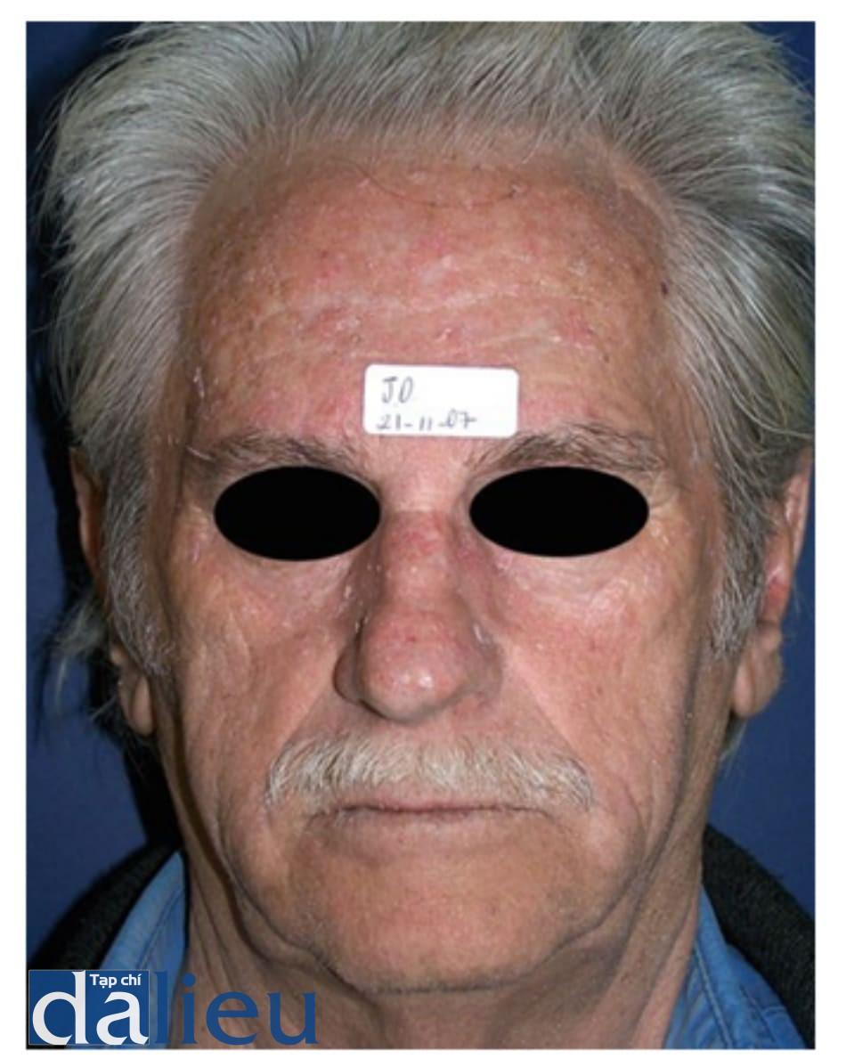 Hình 1: ảnh bệnh nhân ban đầu