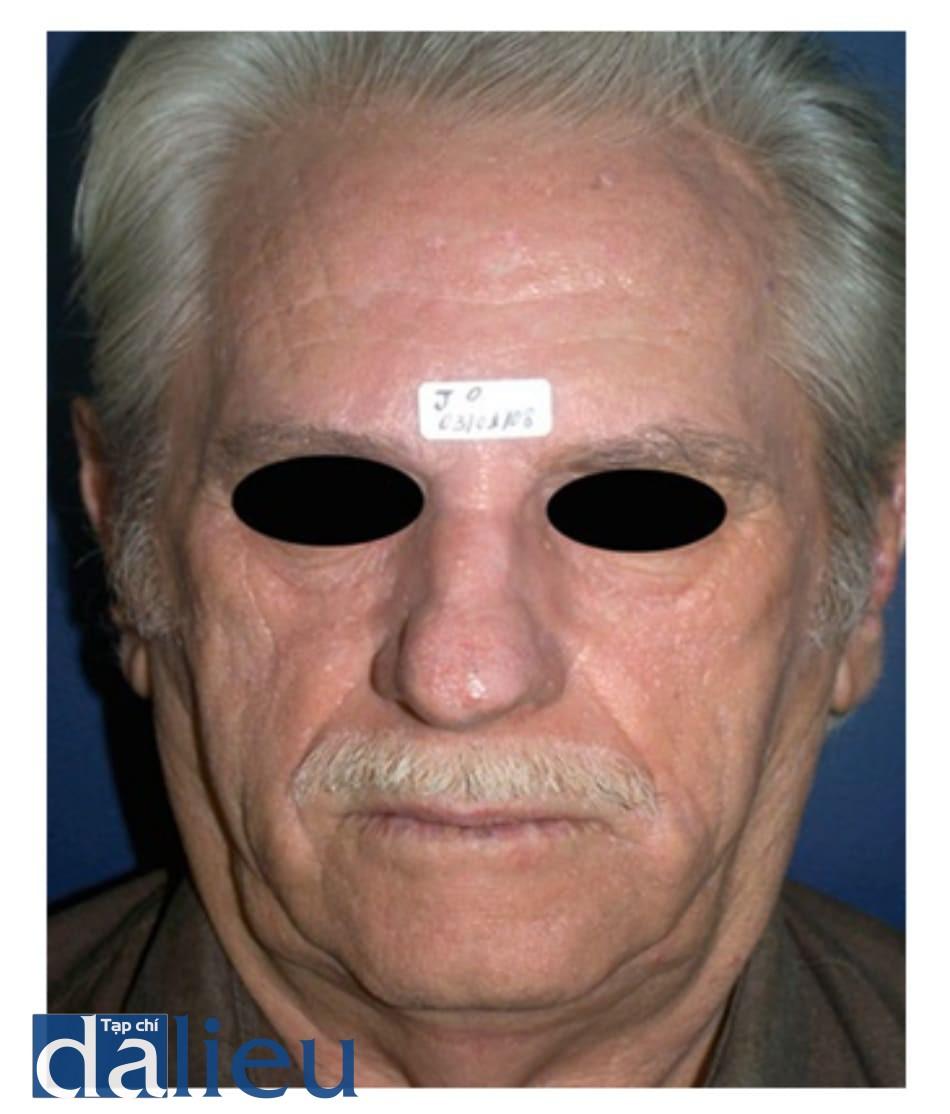 Hình 3: Hình ảnh bệnh nhân 30 ngày sau khi cạo bỏ dày sừng ánh sáng và kết hợp bôi phenol 88% tại chỗ và bôi TCA 35% toàn bộ mặt sau đó.