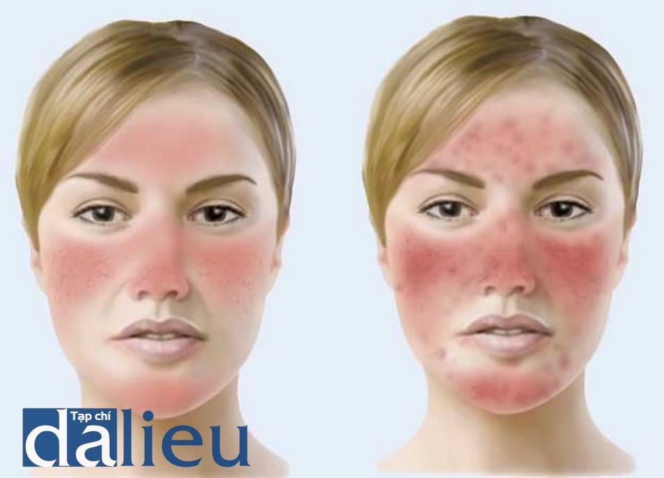 Hình ảnh da đỏ sau khi peel