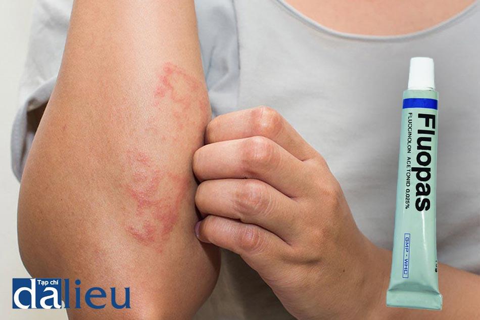 Fluopas giúp điều trị bệnh viêm da tiếp xúc