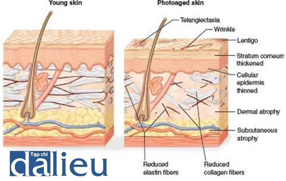 HÌNH 5 Các đặc tính mô bệnh học của da trẻ và da lão hóa do ánh sáng mặt trời.
