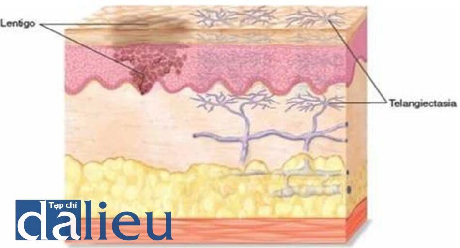 HÌNH 6 Dày sừng ánh sáng và giãn mao mạch ở vị trí dưới da.