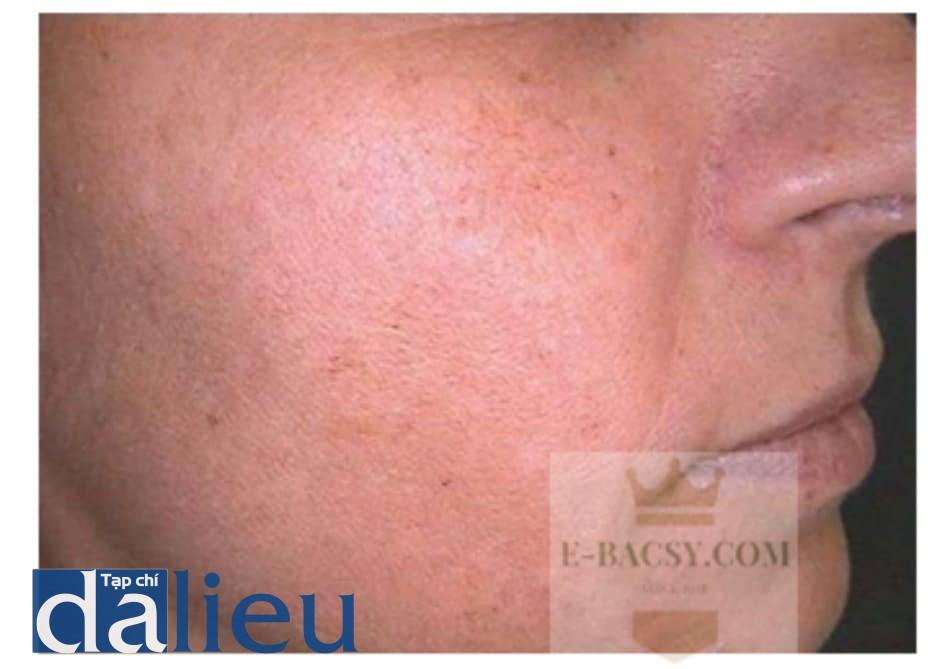 Hình 1.6 Lão hóa da mức độ nhẹ/trung bình trên mặt
