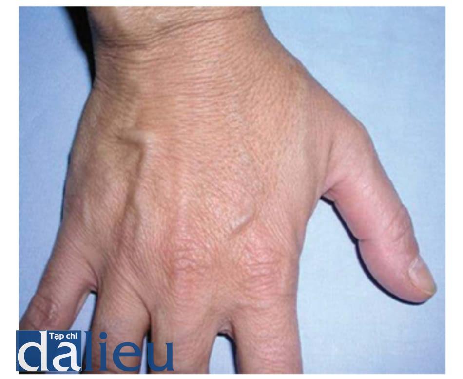 Hình 1.7 Lão hóa da nhẹ ở bàn tay