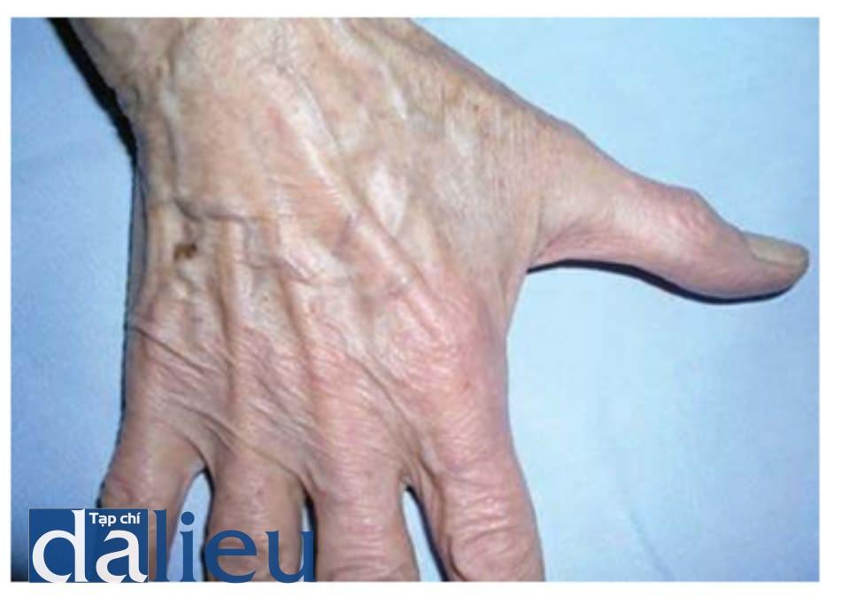 Hình 1.9 Lão hóa da nặng ở tay