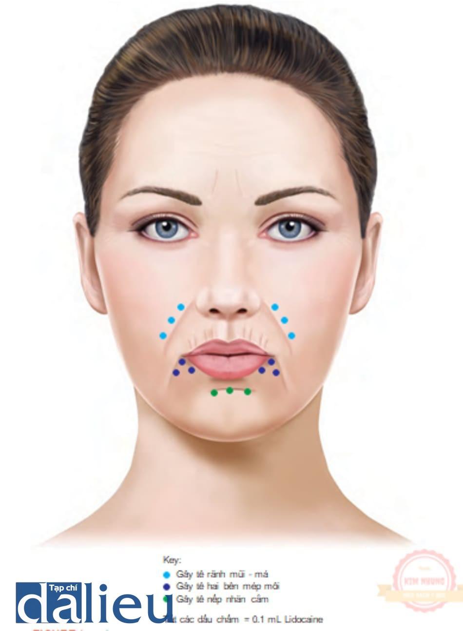 FIGURE 1 ● Tổng quan về xâm nhập gây tê cục bộ cho các khu vực điều trị da cơ bản.