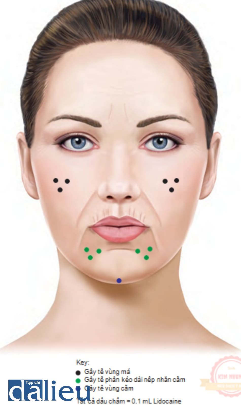 FIGURE 2 ● Tổng quan về xâm nhập gây tê cục bộ cho các vùng điều trị da nâng cao.