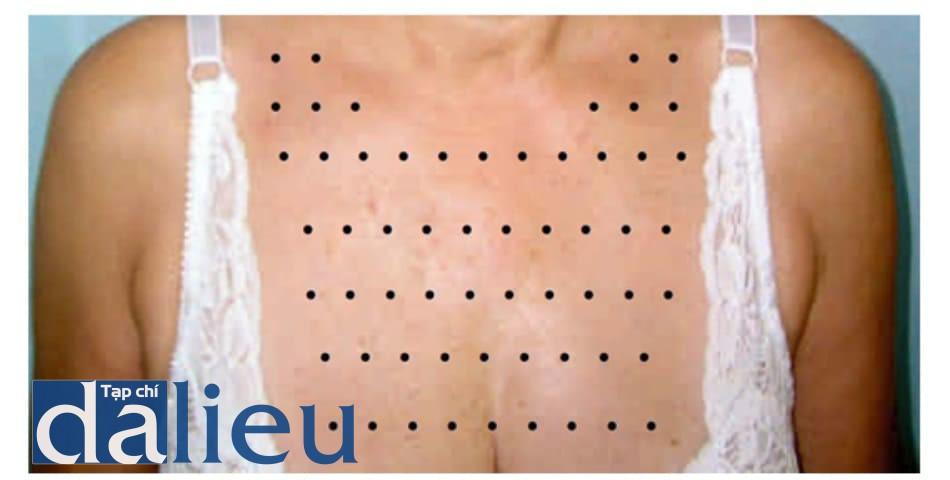 Hình 4.2 vùng viền cổ thấp: các chấm đen là vị trí bác sĩ tiến hành tiêm