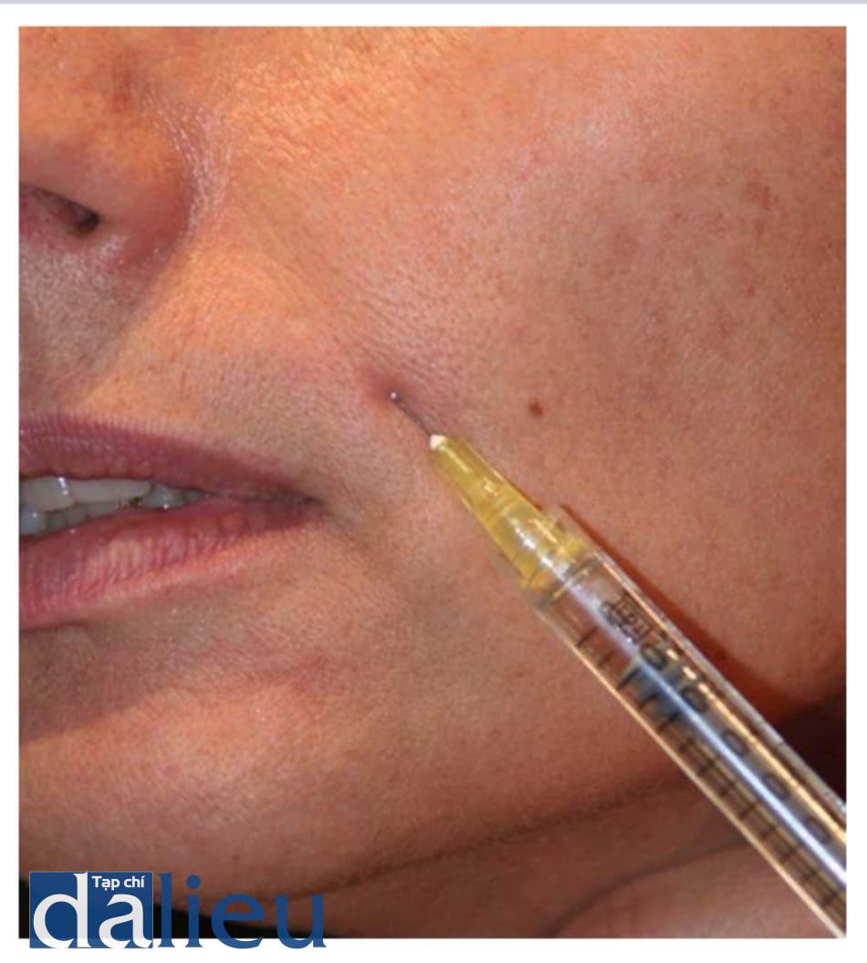 Hình 4.8 (a) linear threading: trong quá trình điều trị