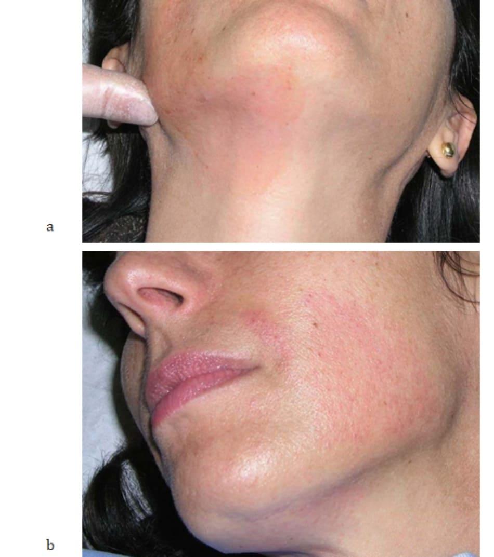 Hình 6.12 (a) Tiến hành massage nhẹ sau khi điều trị cho phép lượng sản phẩm còn lại trên da được hấp thụ hoàn toàn, (b) Quá trình hấp thụ hoàn toàn sau vài giây