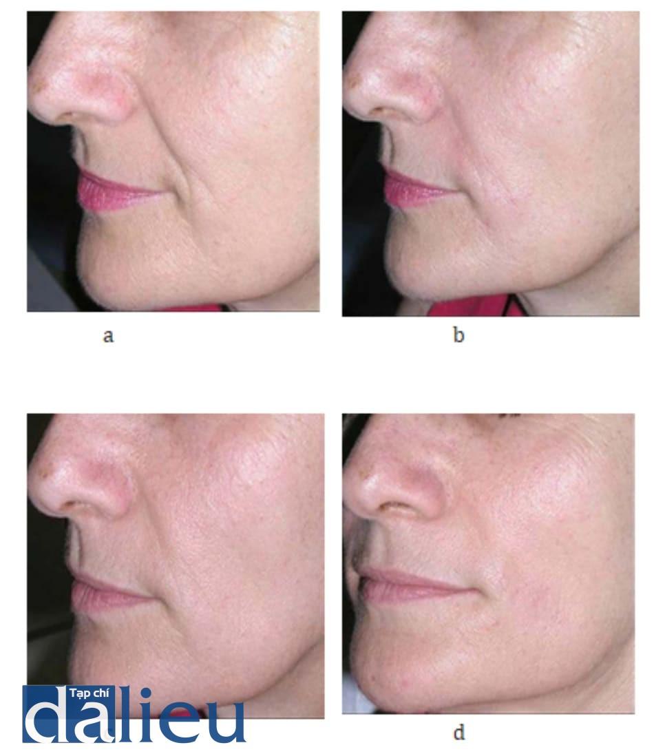 Hình 7.1 Bệnh nhân (a) trước, (b) ngay sau khi điều trị, (c) 2 tuần sau điều trị, (d) 4 tuần sau điều trị