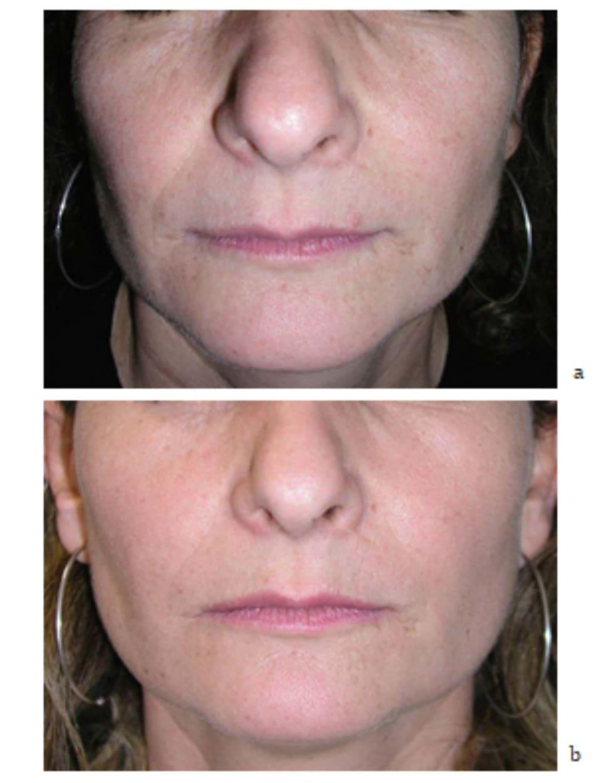 Hình 7.10 Bệnh nhân (a) trước và (b) 1 tháng sau điều trị