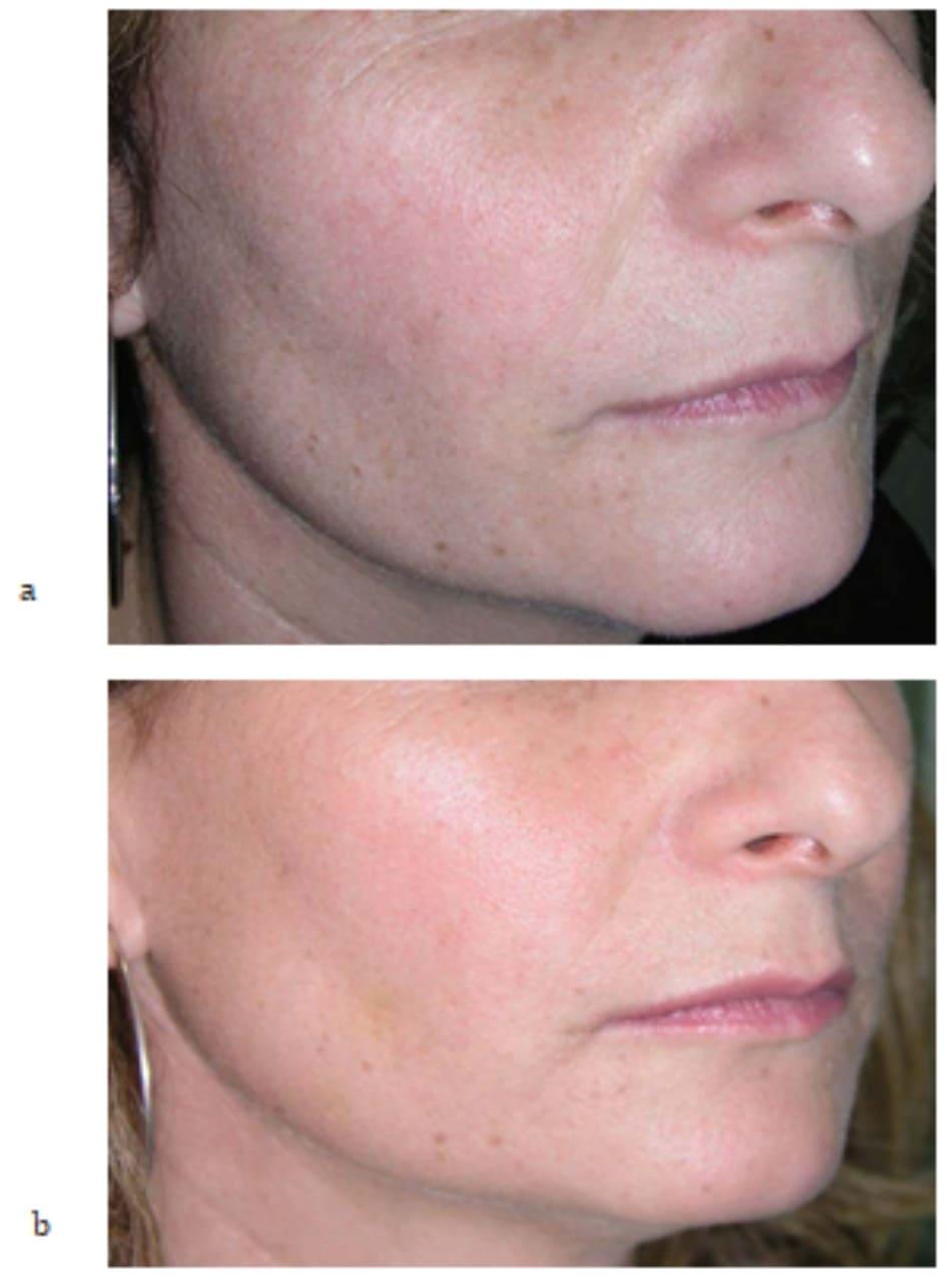 Hình 7.11 (a, b) ảnh chụp phía bên của cùng bệnh nhân trong hình 7.9