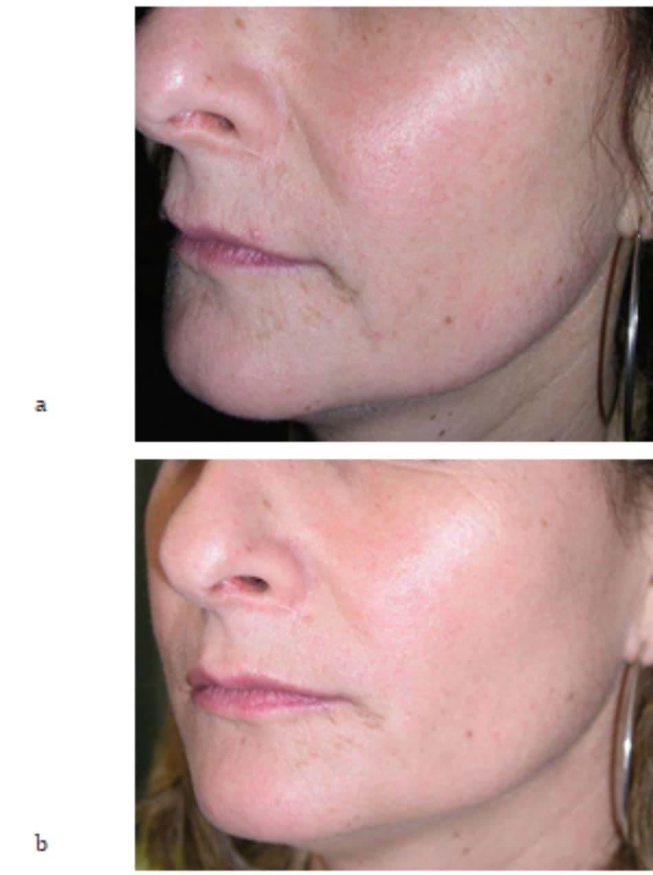 Hình 7.12 (a, b) ảnh chụp phía bên của cùng bệnh nhân trong hình 7.9