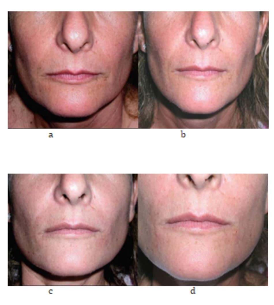 Hình 7.13 (a-d) cùng một bệnh nhân với hình 7.9; lưu ý đến sự cải thiện cấu trúc da trong quá trình điều trị