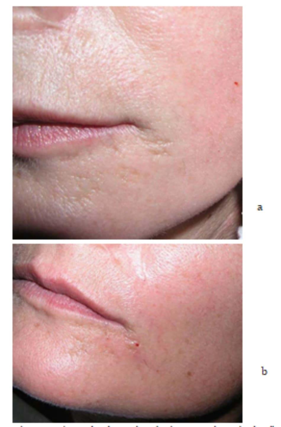 Hình 7.14 Cùng một bệnh nhân với hình 7.9; thậm chí một nốt sẹo nhỏ ở quanh miệng (a) cũng có thể được điều trị bằng phương pháp mesother- apy (b). Nốt sẹo tuy không biến mất nhưng được làm tăng khả năng giữ nước và cải thiện cấu trúc da.