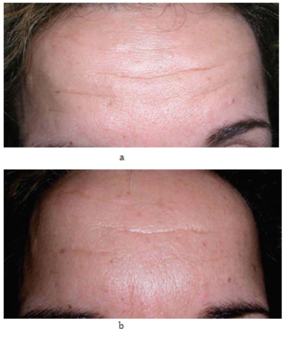 Hình 7.15 Bệnh nhân (a) trước và (b) 1 tháng sau điều trị