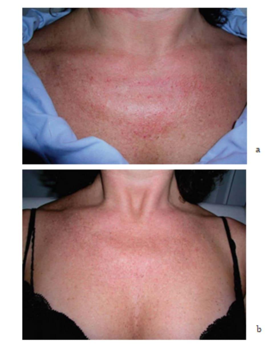 Hình 7.16 Bệnh nhân (a) trước và (b) 2 tuần sau điều trị
