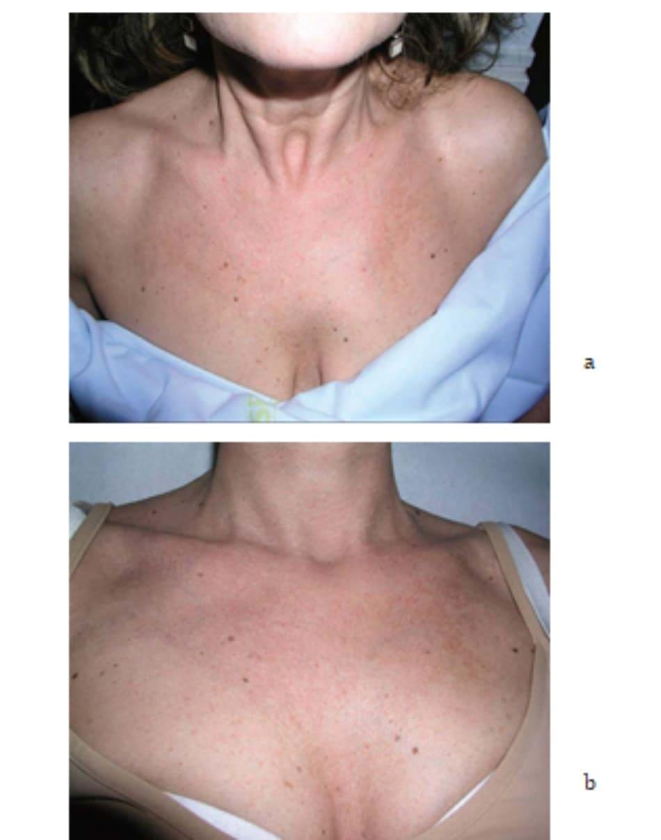 Hình 7.18 Bệnh nhân (a) trước và (b) 2 tuần sau điều trị