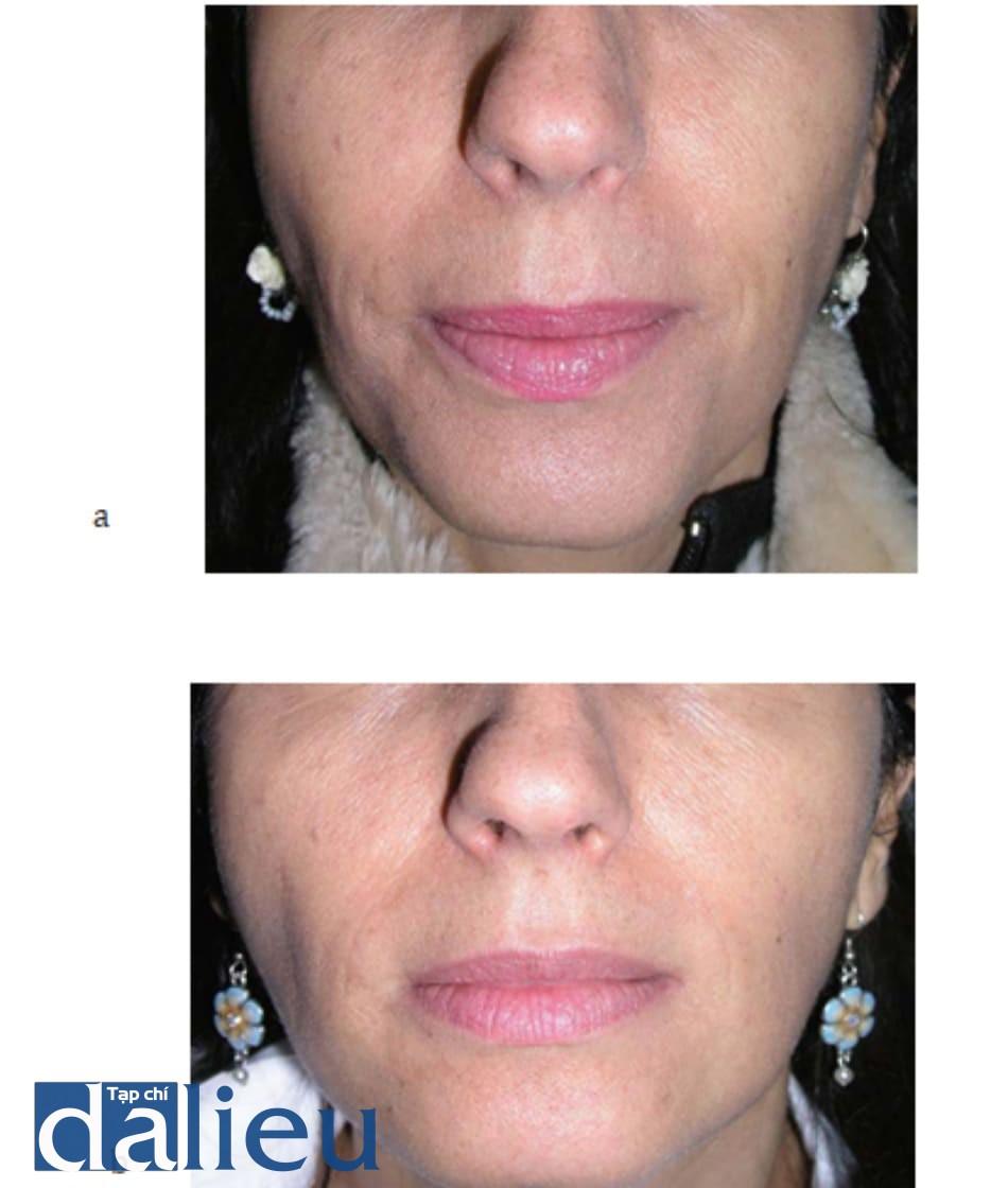 Hình 7.2 Bệnh nhân (a) trước và (b) 2 tuần sau điều trị