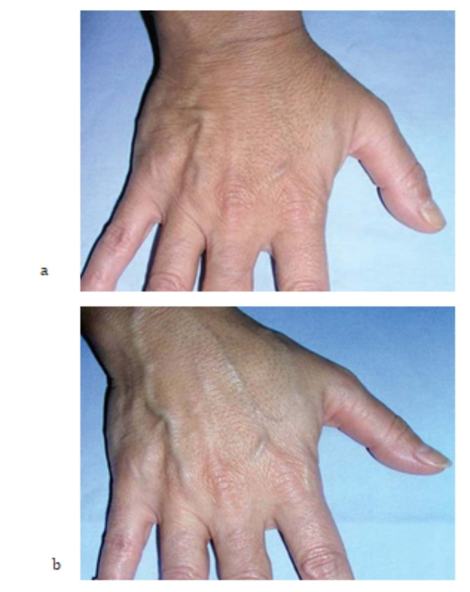 Hình 7.21 Bệnh nhân (a) trước và (b) 2 tuần sau điều trị