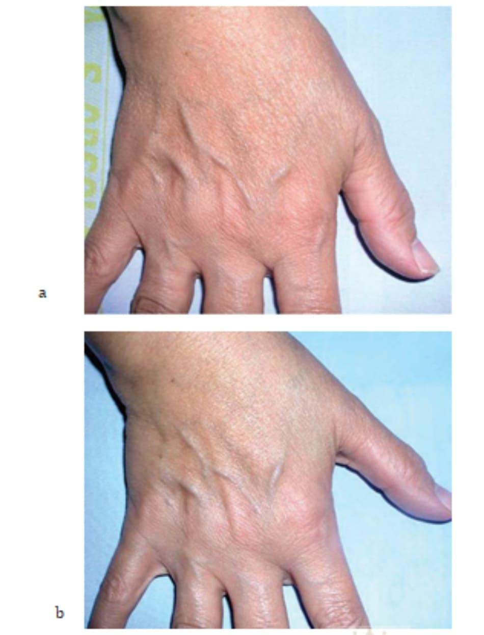 Hình 7.23 Bệnh nhân (a) trước và (b) 2 tuần sau điều trị