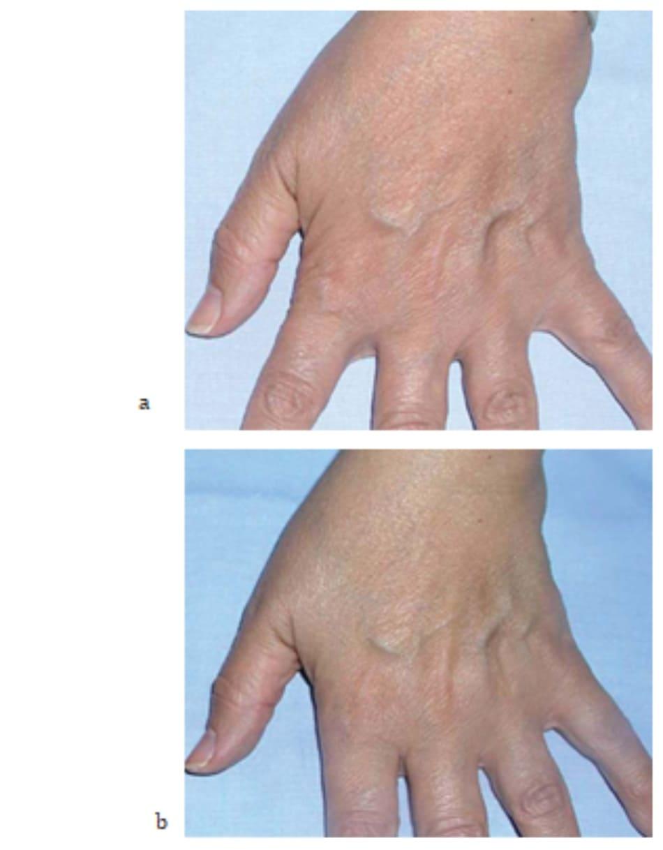 Hình 7.24 Bệnh nhân (a) trước và (b) 2 tuần sau điều trị