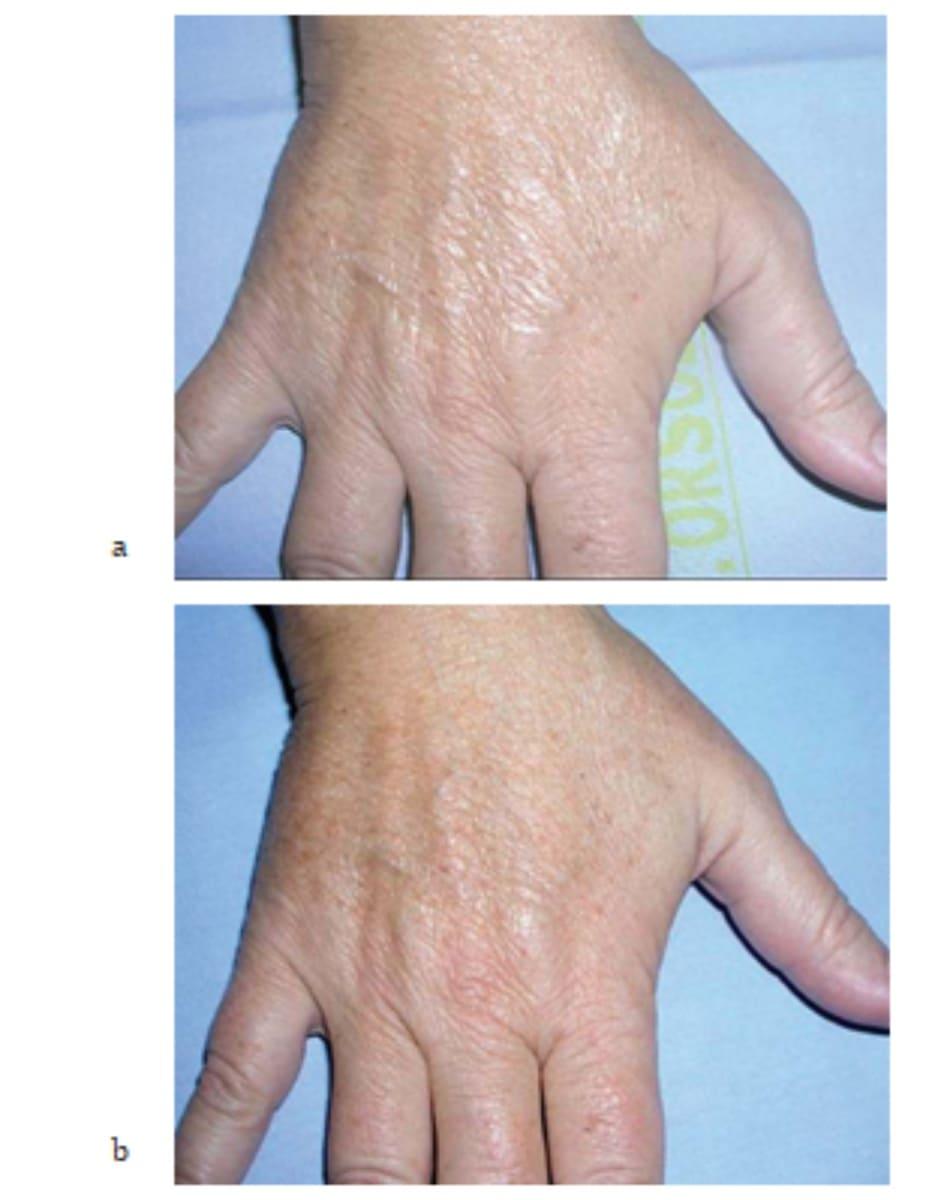 Hình 7.25 Bệnh nhân (a) trước và (b) 2 tuần sau điều trị