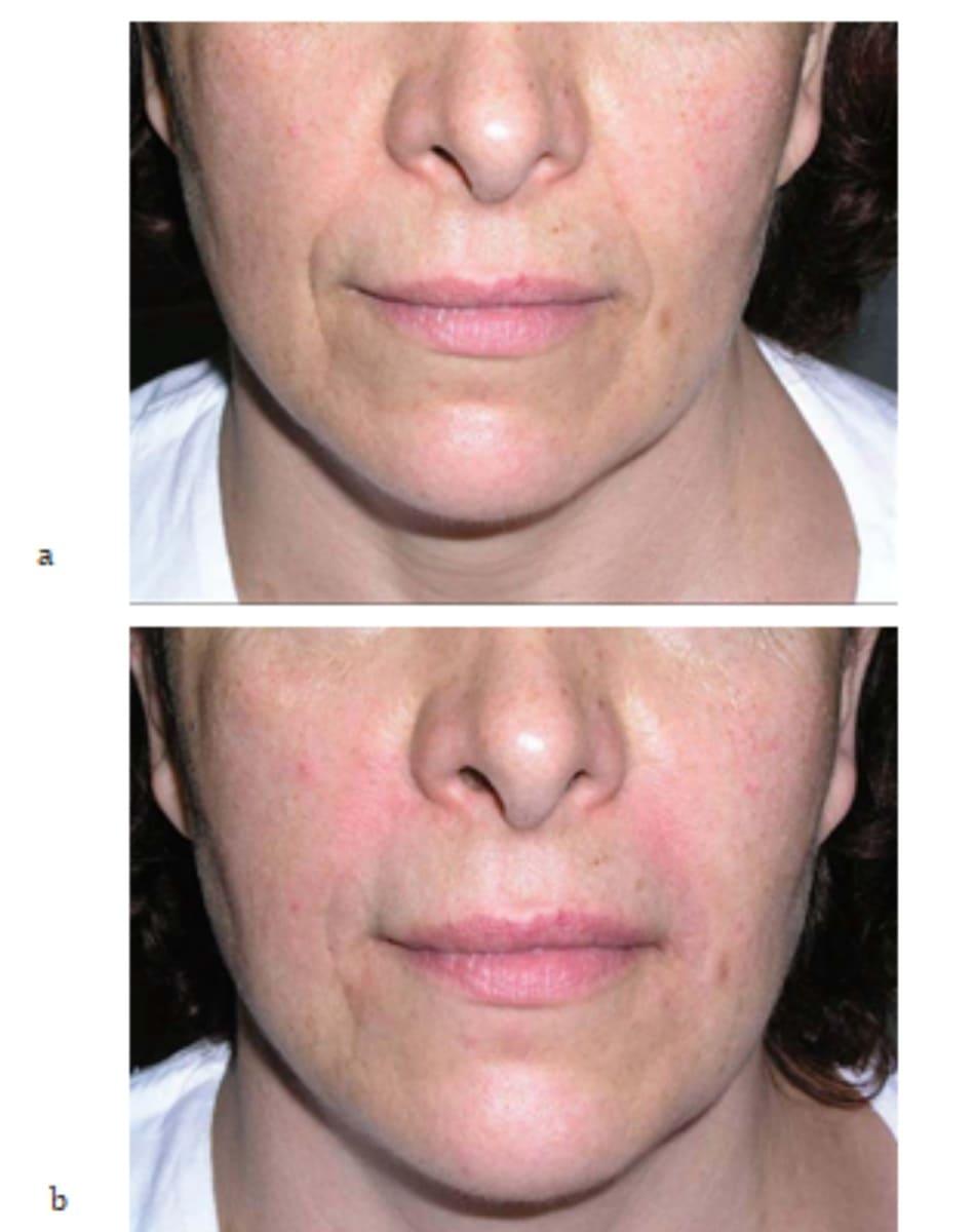 Hình 7.26 Bệnh nhân (a) trước và (b) sau mesotherapy kết hợp tiêm filler