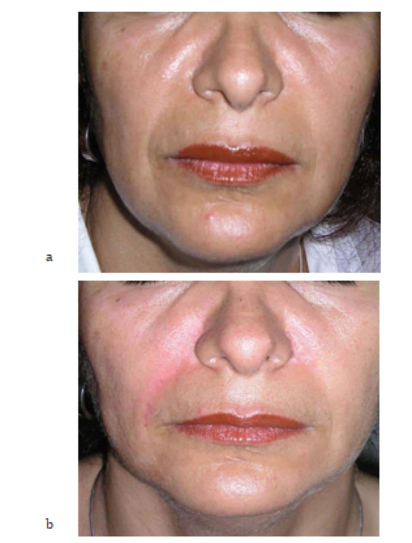 Hình 7.27 Bệnh nhân (a) trước và (b) sau mesotherapy kết hợp tiêm filler