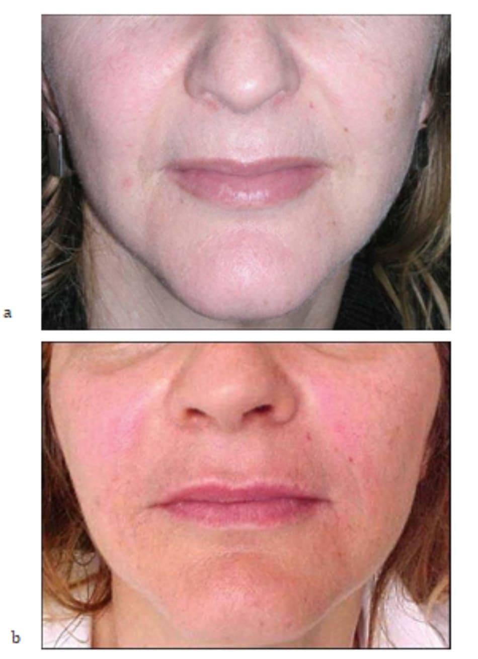 Hình 7.28 Bệnh nhân (a) trước và (b) sau mesotherapy kết hợp tiêm filler