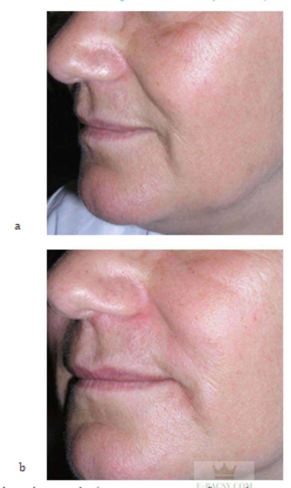 Hình 7.29 Bệnh nhân (a) trước và (b) sau mesotherapy kết hợp tiêm filler