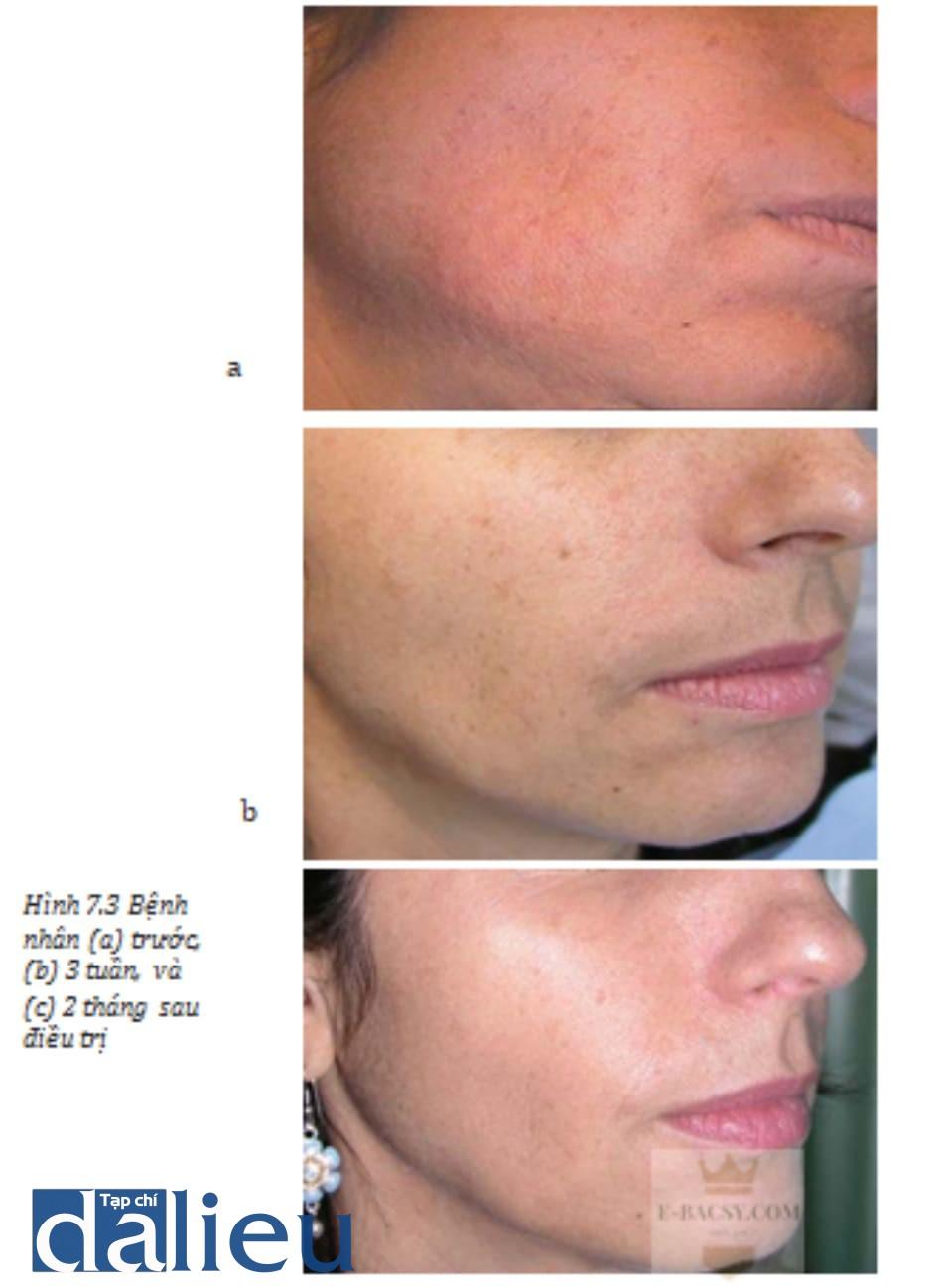 Hình 7.3 Bệnh nhân (a) trước, (b) 3 tuần, và (c) 2 tháng sau điều trị