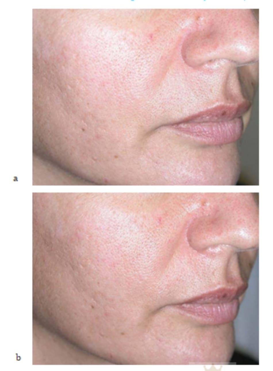 Hình 7.31 Bệnh nhân (a) trước và (b) sau mesotherapy kết hợp tiêm filler
