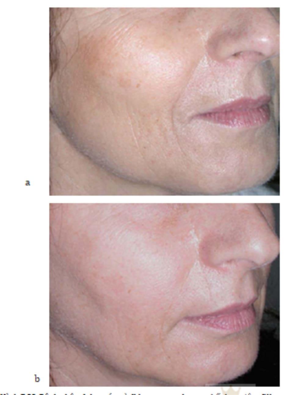 Hình 7.32 Bệnh nhân (a) trước và (b) sau mesotherapy kết hợp tiêm filler