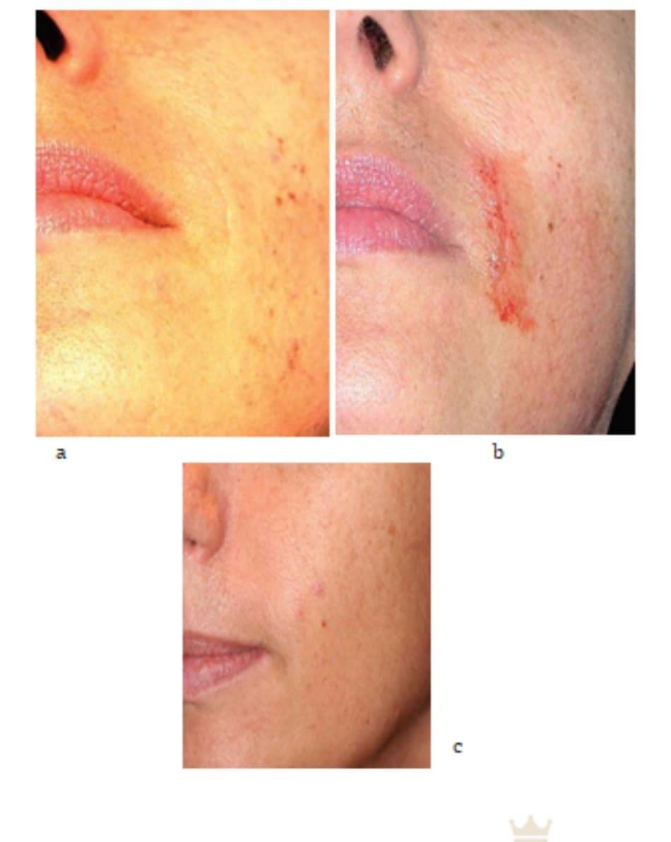 Hình 7.33 Bệnh nhân (a) trước, (b) ngay sau tiêm mesotherapy, và (c) sau khi tiêm filler