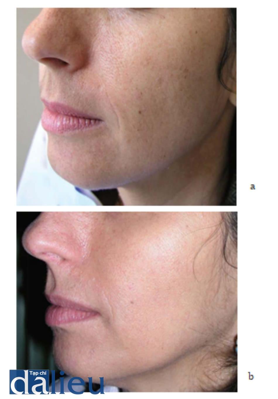 Hình 7.4 Bệnh nhân (a) trước và (b) 3 tuần sau điều trị