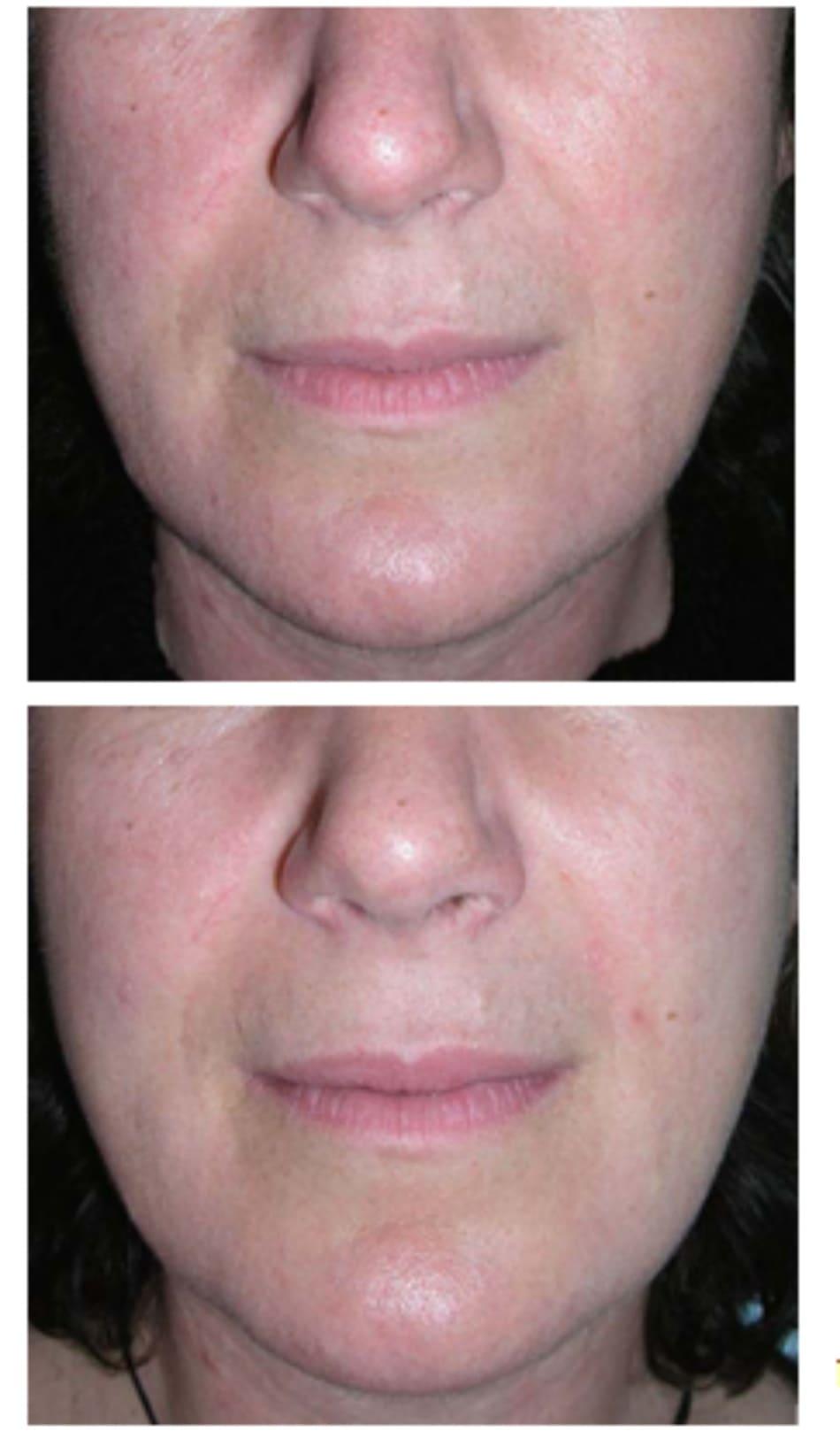 Hình 7.5 Bệnh nhân (a) trước và (b) 2 tuần sau điều trị