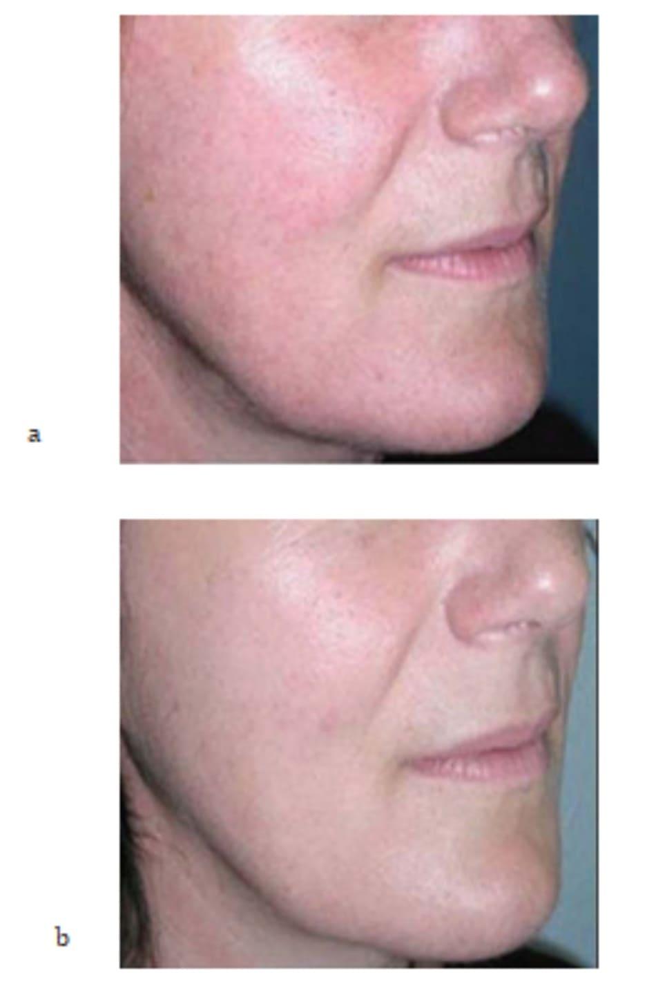 Hình 7.6 (a, b) ảnh chụp phía bên của cùng bệnh nhân trong hình 7.5