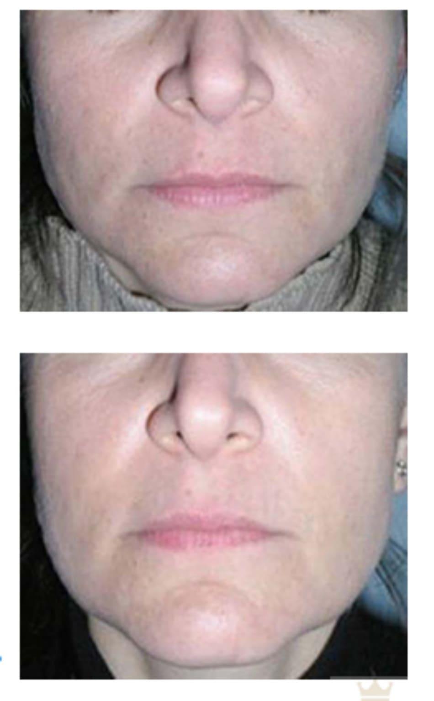 Hình 7.7 Bệnh nhân (a) trước và (b) 2 tuần sau điều trị