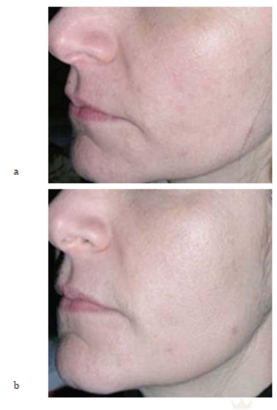 Hình 7.8 (a, b) ảnh chụp phía bên của cùng bệnh nhân trong hình 7.7