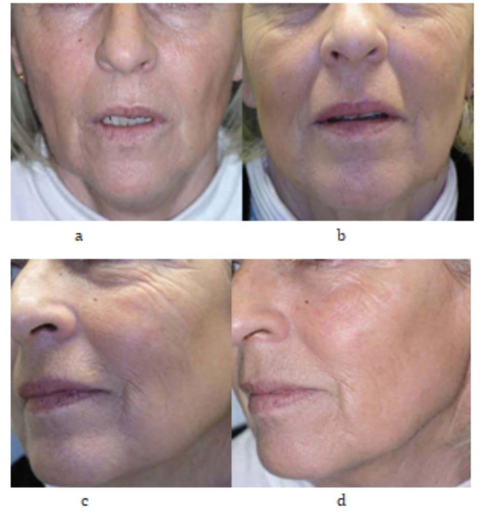 Hình 7.9 Ảnh chụp trước và bên của bệnh nhân trước và 3 tuần sau điều trị