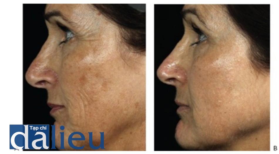 HÌNH 10 Các nếp nhăn vùng má, chân chim, và tăng sắc tố trước khi (A) và sau khi (B) điều trị tái tạo bề mặt da bằng laser phân đoạn không xâm lấn sử dụng 1550 nm laser.