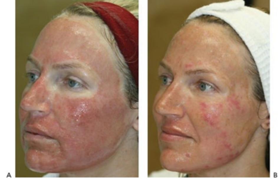 HÌNH 10 Quy trình hồi phục của tái tạo bề mặt da phân đoạn xâm lấn với đầu laser erbium vào ngày đầu tiên sau điều trị (A) và ngày thứ tư sau điều trị (B).