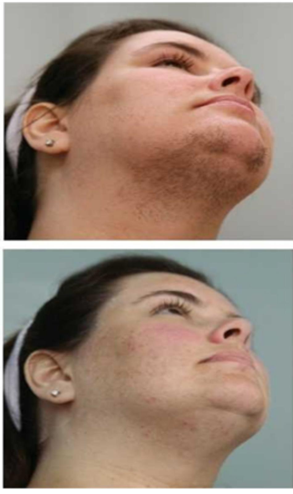 Hình 11: Lông ở vùng cổ trước và cằm trước khi (A) và sau khi (B) 6 lần điều trị triệt lông sử dụng IPL