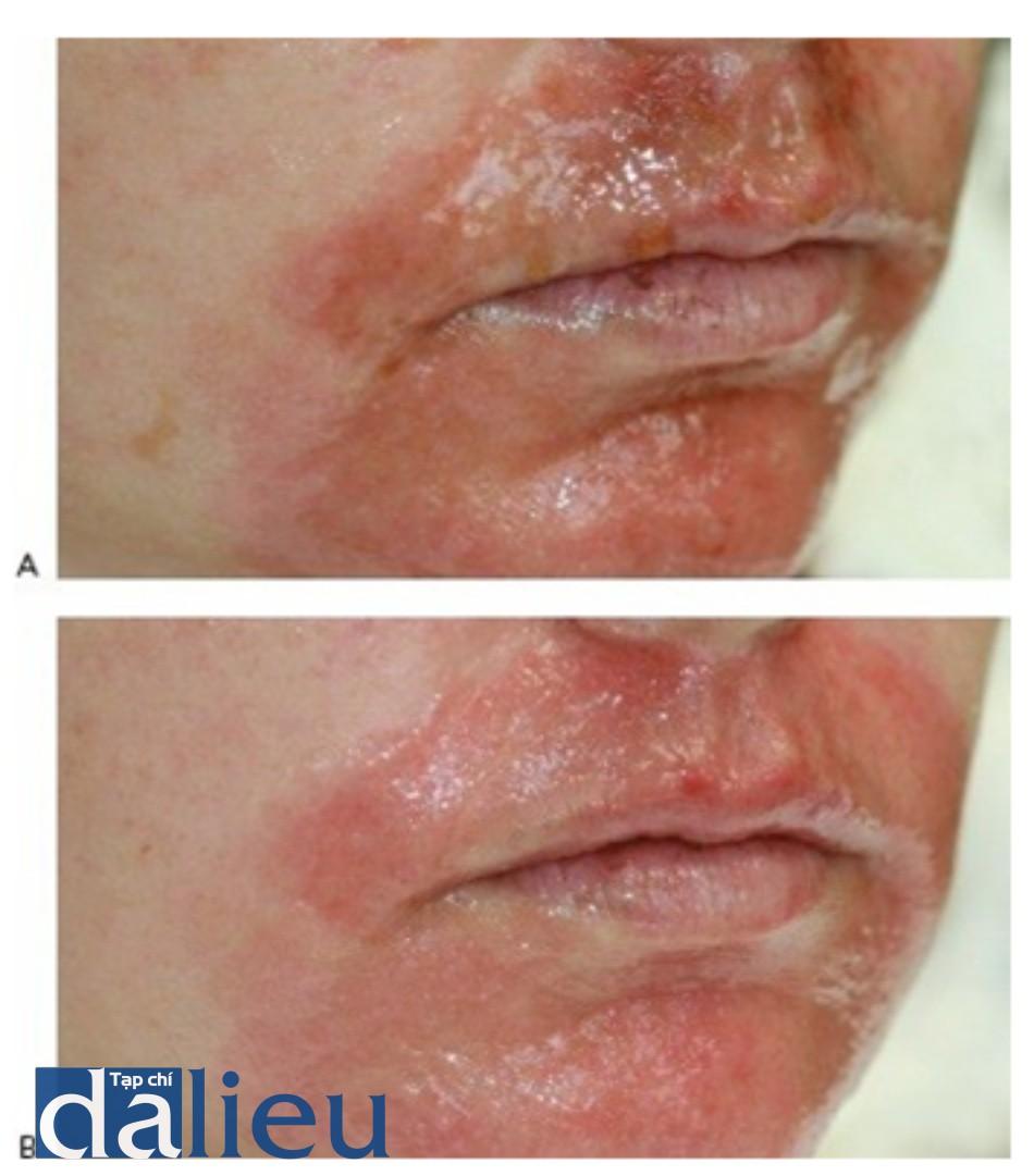 HÌNH 11 Tái tạo bề mặt da phân đoạn xâm lấn xung quanh miệng vào ngày đầu tiên sau điều trị trước khi (A) và ngay sau khi điều trị (B) được làm sạch với dung dịch giấm.