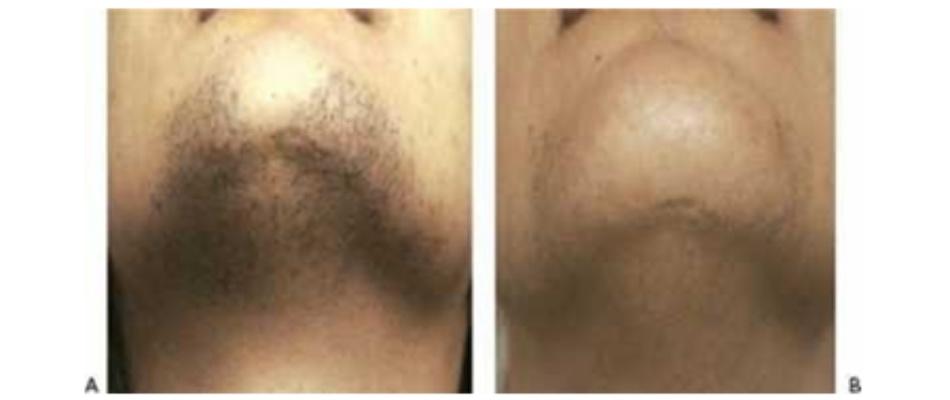 Hình 12: Lông vùng cằm trước khi (A) và sau khi (B) bốn lần điều trị triệt lông sử dụng laser 755nm